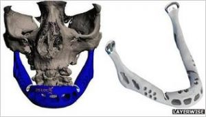 a 3d printed lower jaw implant